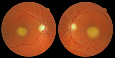 this is the best example of best s disease that i have ever seen in    Best Disease Macular Dystrophy